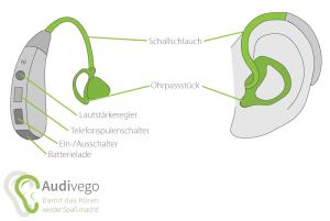 Ohr mit Hörgerät